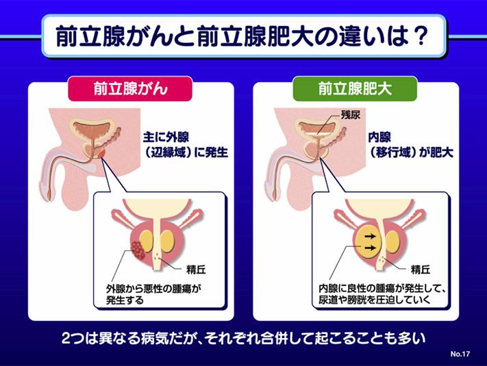 前立腺がんと前立腺肥大の違いは?